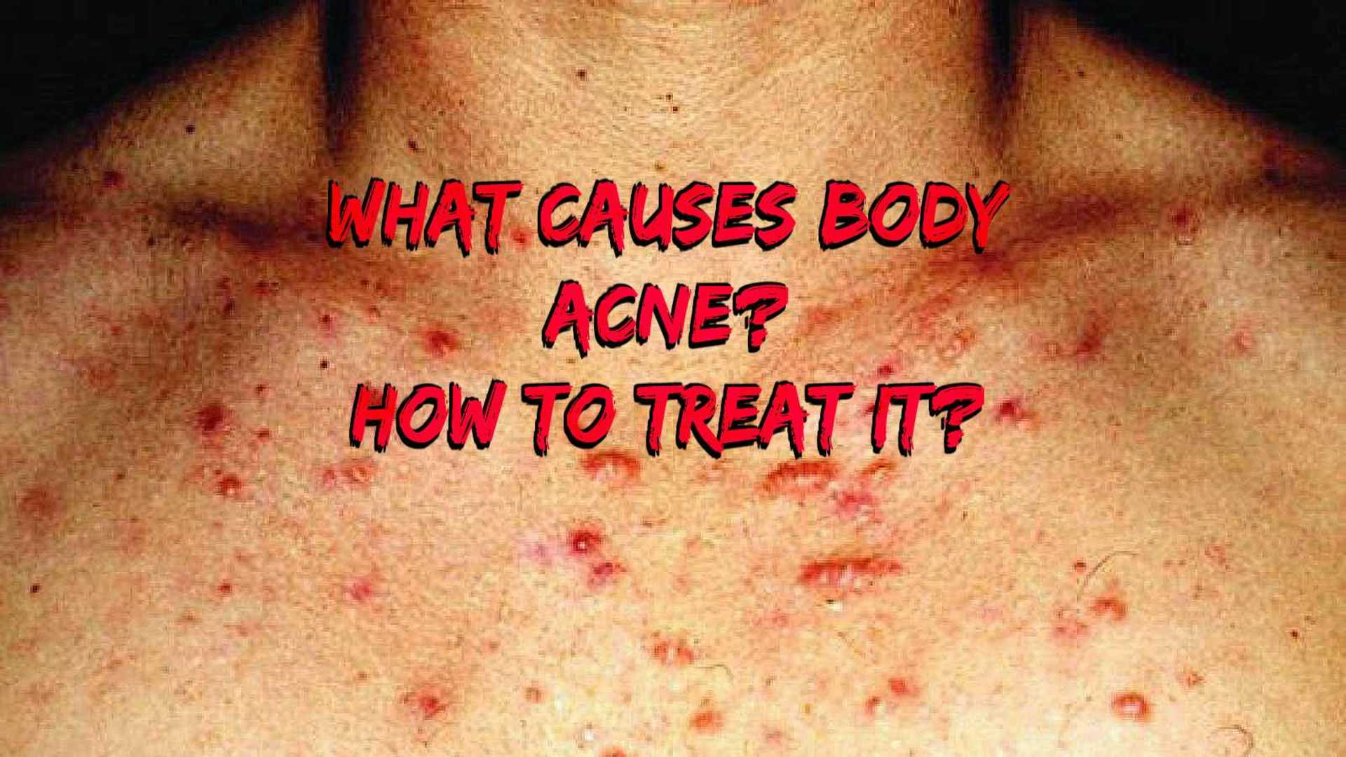 What Causes Body Acne and How to Treat It? image