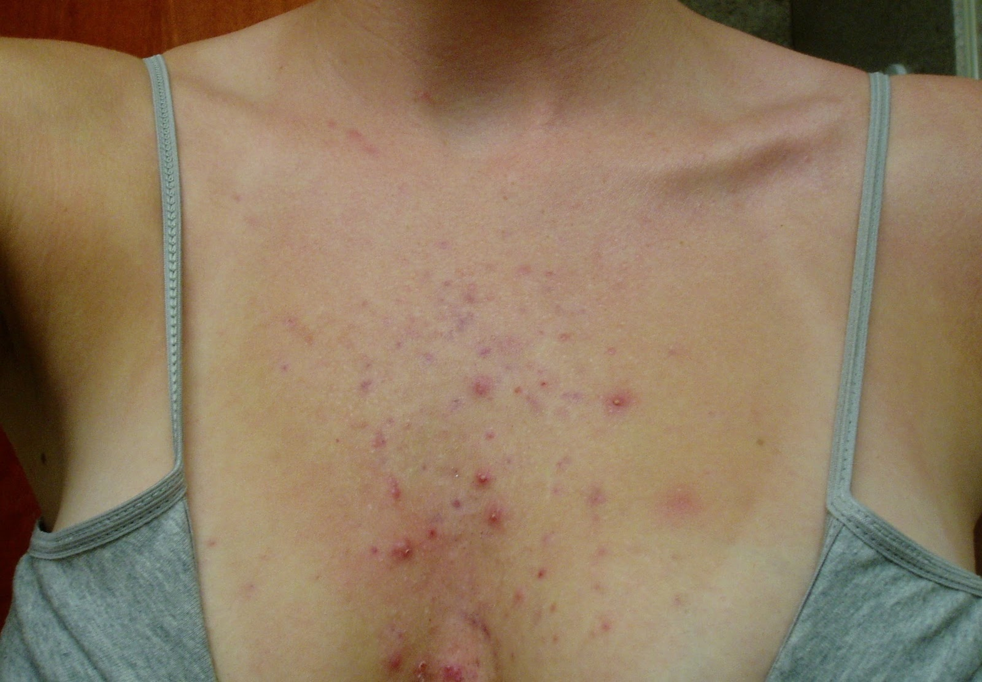 A Blush Of Pink - acne on the chest