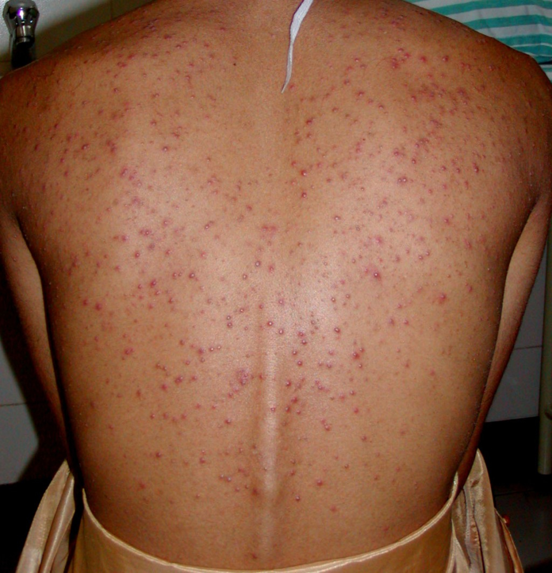 A Blush Of Pink - steroid-acne-2