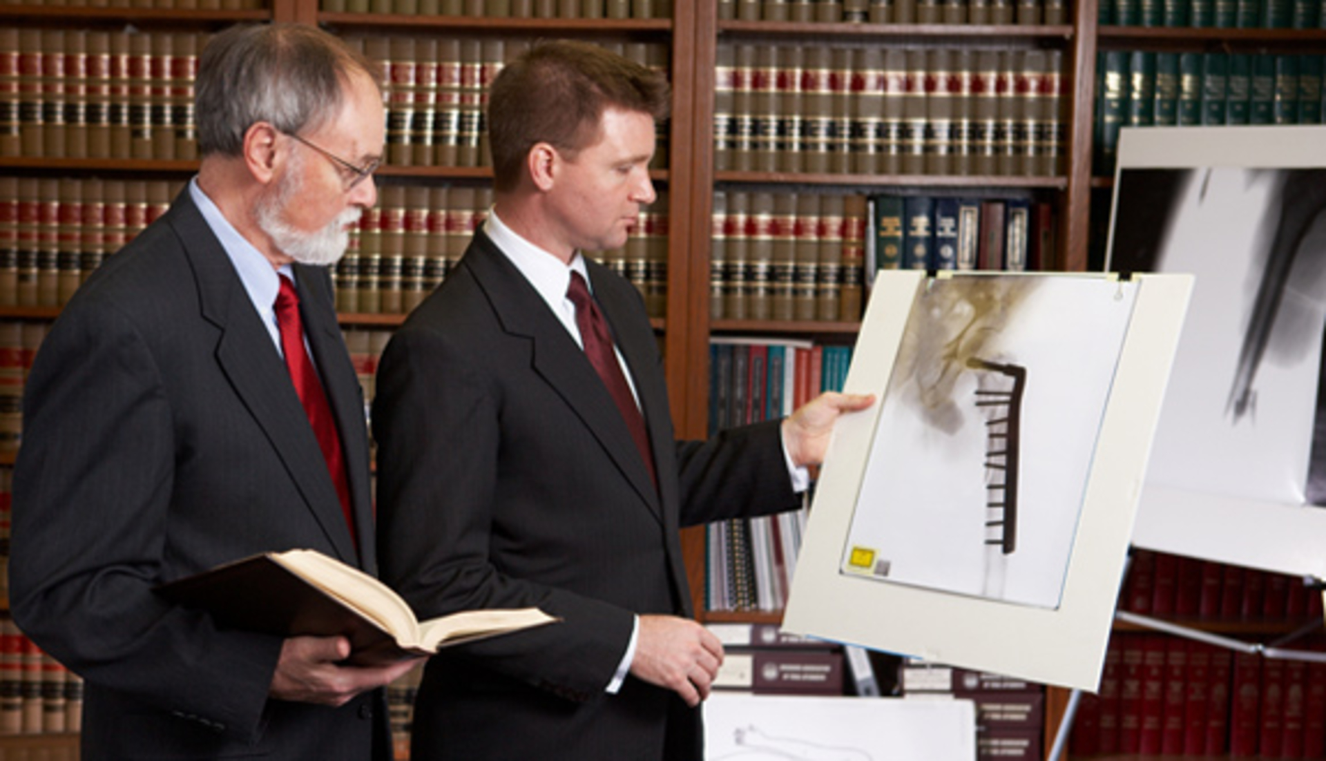 What Is The Scope Of Personal Injury Attorneys image
